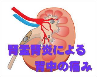 腎盂腎炎による背中の痛み 鍼灸師が執筆・監修