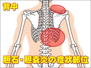 痛み の な 脇腹 よう 右 痛 筋肉