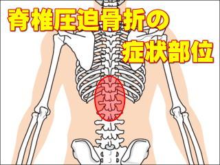 側 右 痛み 背中 脇腹