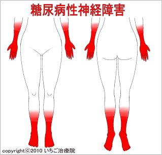 腰痛と足のしびれ 【鍼灸師が執筆・監修】